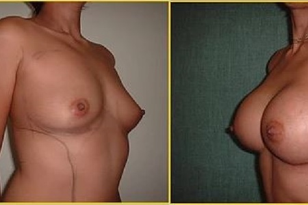 Breast augmentation antes y despues 4