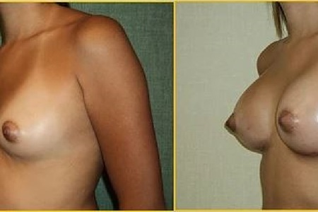 Breast augmentation antes y despues 2
