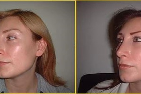 Nose surgery antes despues 7