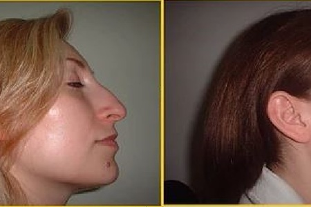 Nose surgery antes despues 6