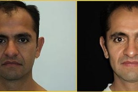 Ear surgery antes despues 1
