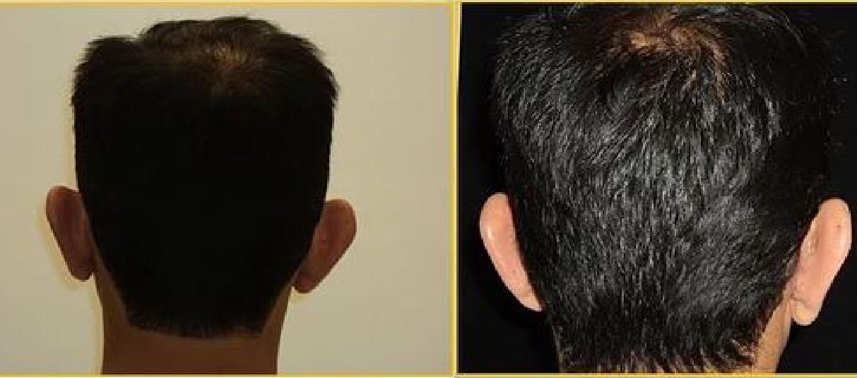Ear surgery antes despues 3