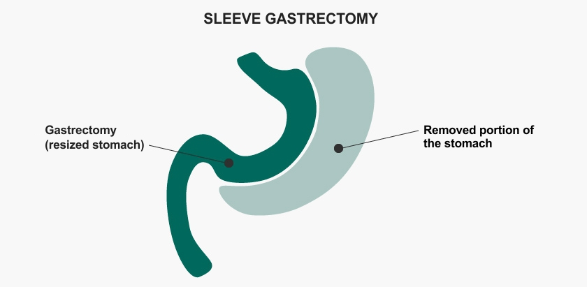 Solucion obesidad tubo gastrico 1