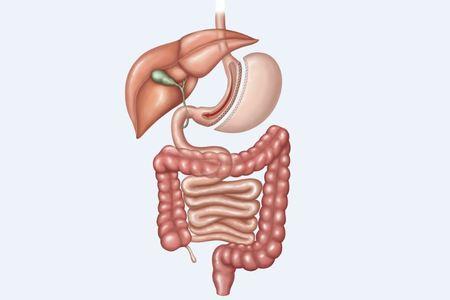 Sleeve gastric
