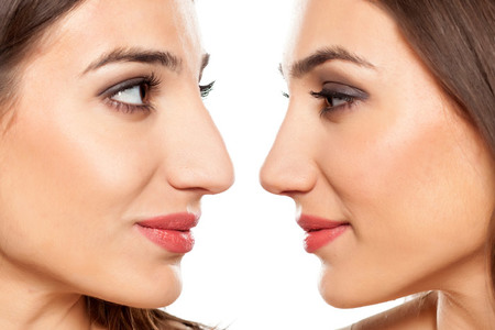 Rhinoplasty  / Nose Surgery
