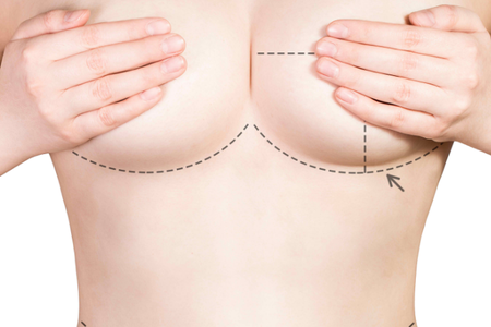 Long term effects of breast lift