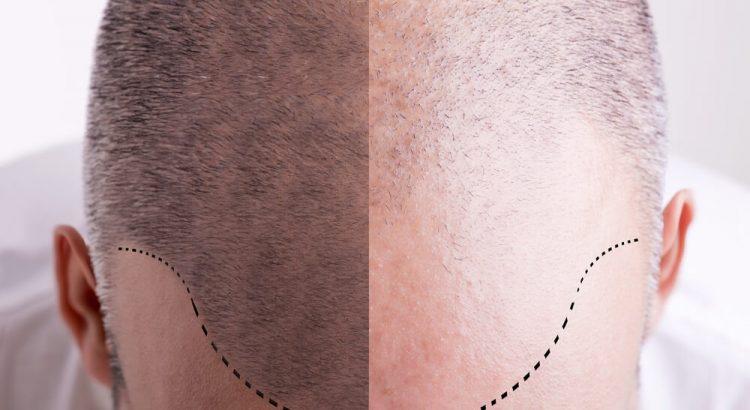 Micropigmentacao capilar entenda como e feita 750x410