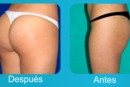 Buttock  Augmentation / Brazilian Butt Lift