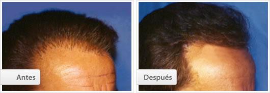 Implante cabello