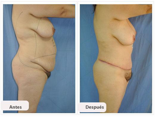 Abdominoplastia e p per