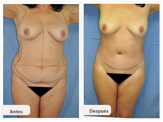 Abdominoplastia m c