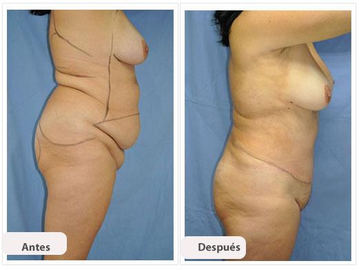 Abdominoplastia m c per
