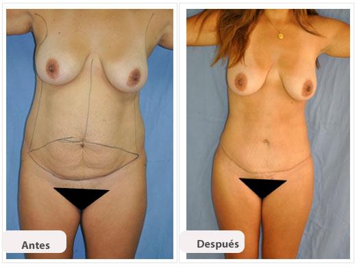 Abdominoplastia m n