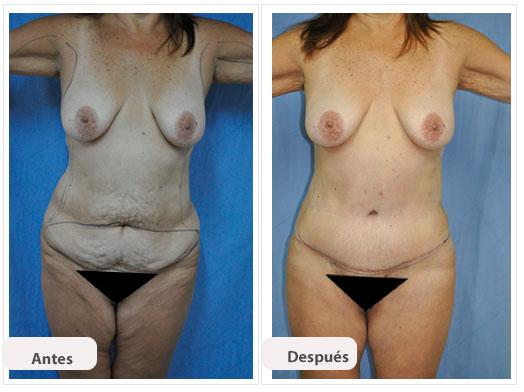 Abdominoplastia n s