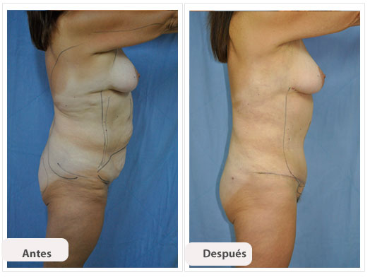 Abdominoplastia n s per