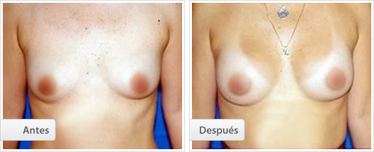 Mamoplastia aumento2