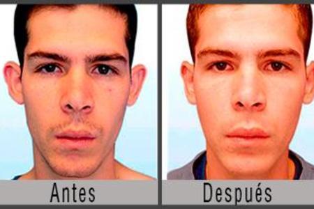Otoplasty / Ear Surgery