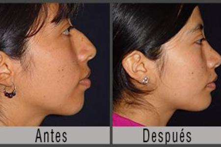 Mentoplasty  / Chin Surgery