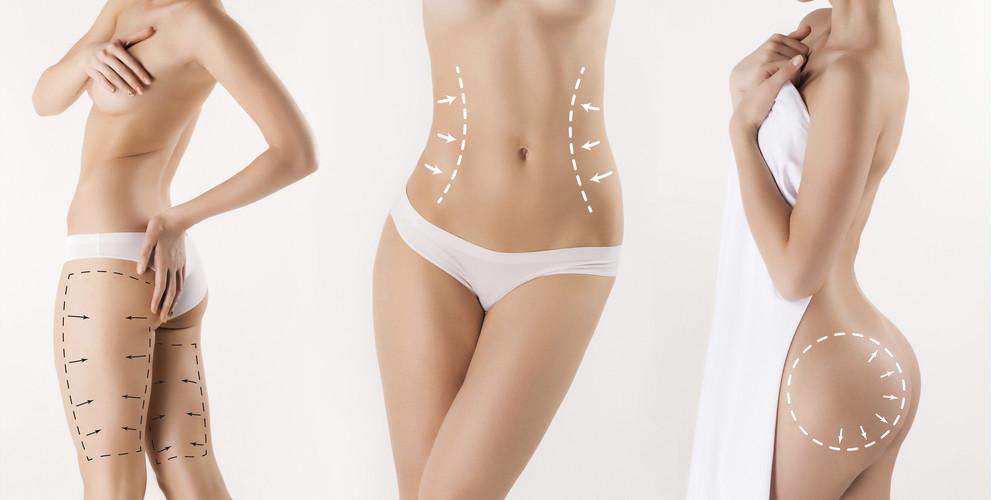 Liposuction guide