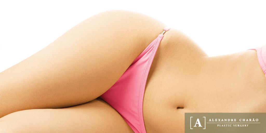 Abdominoplasty3