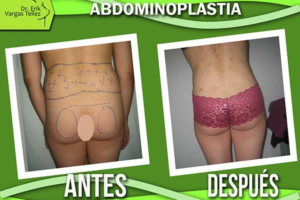 Abdominoplastia3