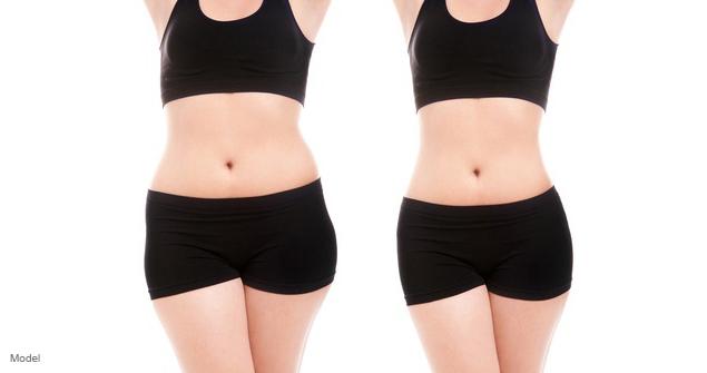 Abdomen vs tummy tuck