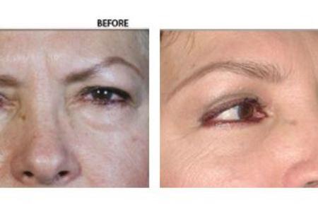 Blepharoplasty / Eyelid Surgery