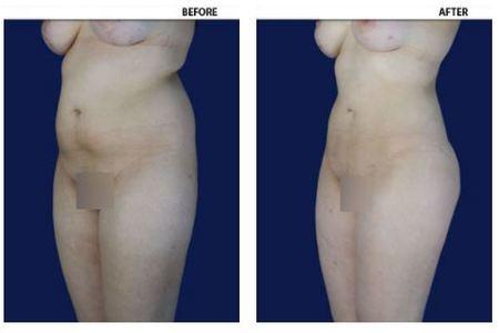 Liposuction / Liposculture (Lipoplasty)