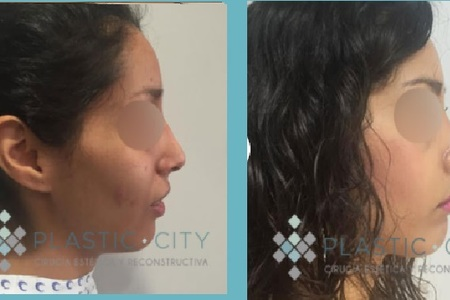 Rhinoplastia / Nose Surgery