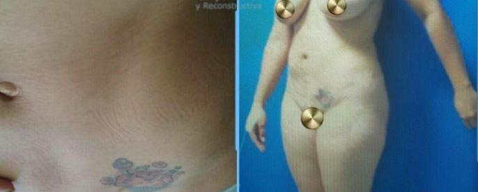 Liposuction003