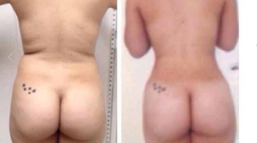 Liposuction001