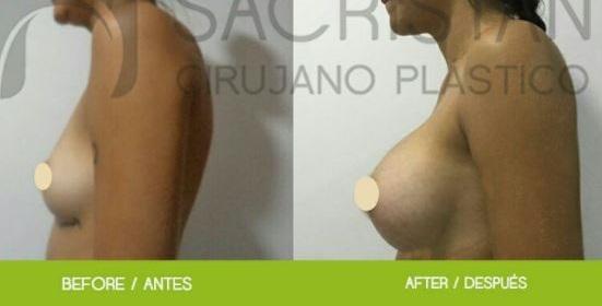 Breastaugmentation03