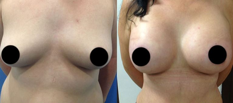Breast augmentation04