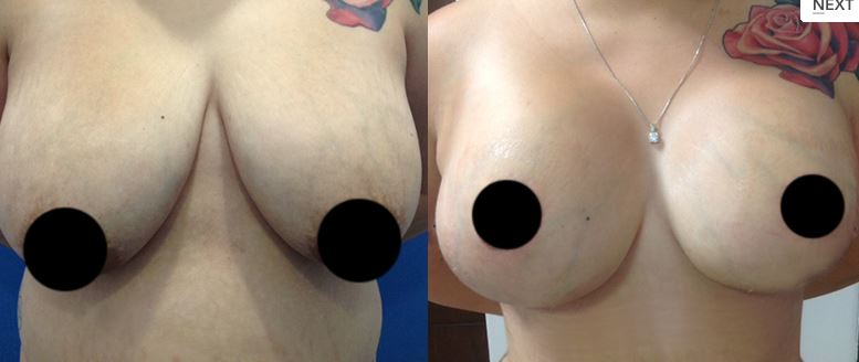 Breast reduction02