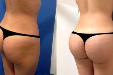 Butt implants3