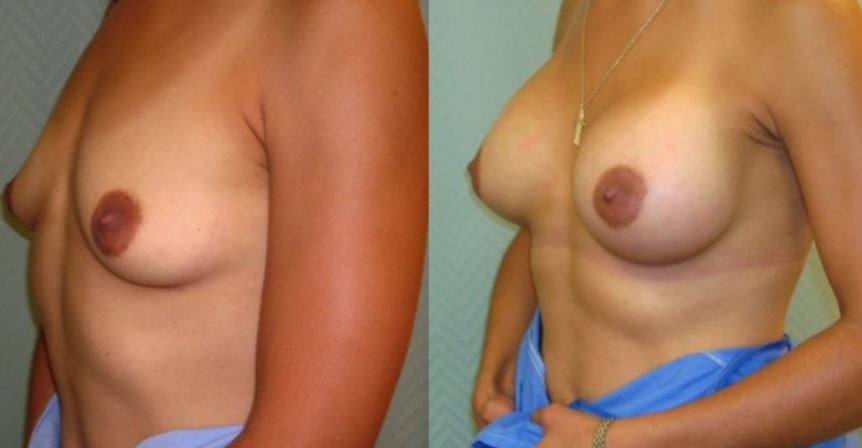 Breast augmentation.2