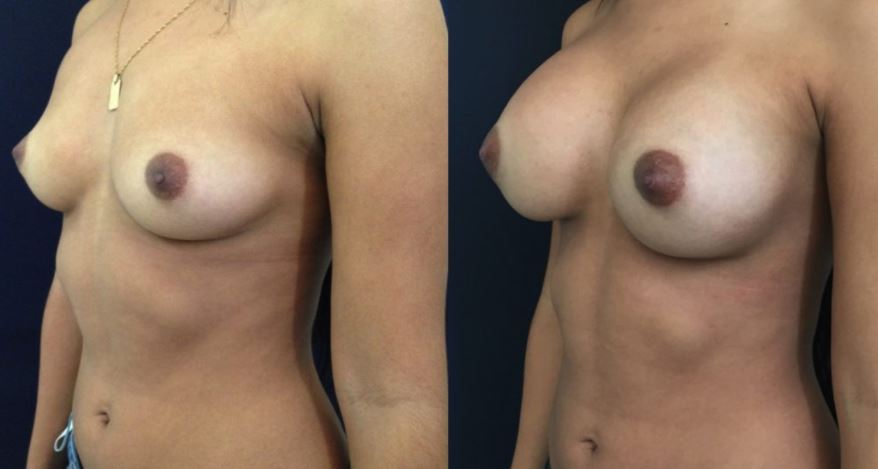 Breast augmentation.3