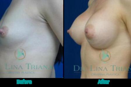 Breast augmentation3