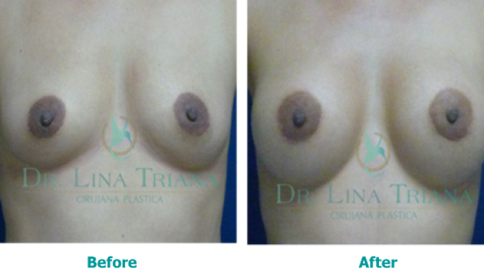 Breast augmentation2