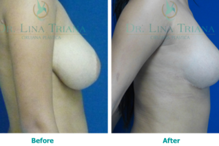 Breast reduction2