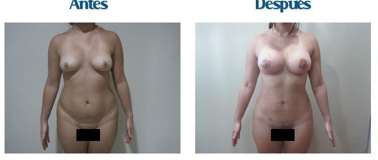Lipo breast