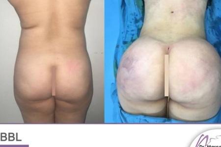 Butt Augmentation /  Brazilian Butt Lift