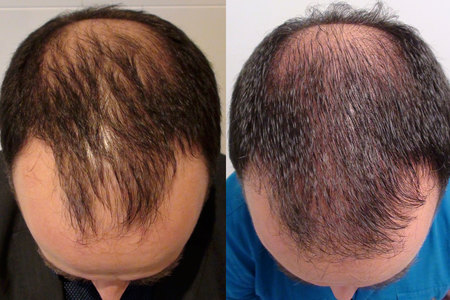 Follicular Unit Transplantation (FUT)