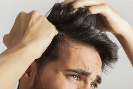 Non-surgical Hair Growth Options