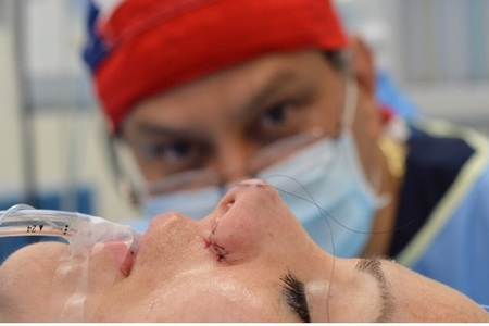 Nosesurgery