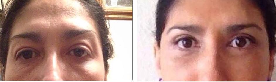 Eyelid surgery.2