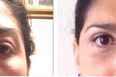 Blepharoplasty or Eyelid Surgery