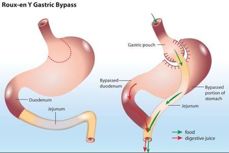 Roux en Y Gastric Bypass Surgery