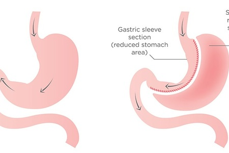 Sleeve gastrectomy surgery diagram2