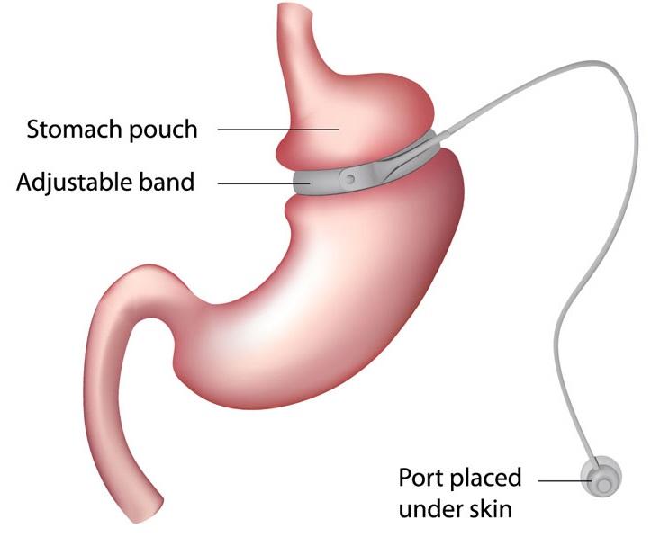 Gastric band lapband 1